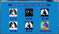 Lung_Segmentation_of_fissures